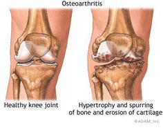 osteoarthr, osteo arthriti, natural treatments, rheumatoid arthriti, modifi antirheumat, diseas modifi, health, antirheumat drug, knee
