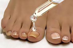 Problemele de circulatie a sangelui nu trebuie ignorate (simptome, cauze, remedii) Beauty Nails, Hair Beauty, Nail Fungus, Tips Belleza, Natural Cosmetics, Feet Care, Natural Medicine, Healthy Tips, Face And Body