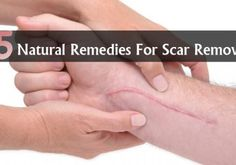 Natural Remedies For Scar Removal
