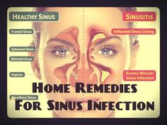 Home Remedies for Sinus Infection – Natural Sinus Infection Treatment