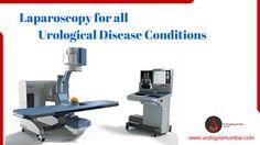 We provide #Laparoscopy for all urological disease conditions. To know more visit : http://www.urologistmumbai.com/ #BestUrologyTreatment #urologistmumbai