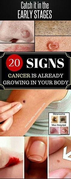 Early Signs That Cancer Is Growing In Your Body #EarlySignsThatCancerIsGrowingInYourBody