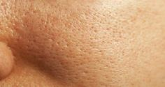 Our Bakersfield surgeon knows that there is no real way to shrink your pores.