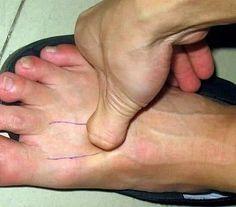 Tai Chong est un des plus importants points d'acupunctures, si ce n'est le plus important, du méridien du foie. F3: