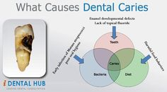 Know about the causes of dental caries