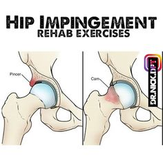 Hip Impingement Exercises, Let Them Talk, Let It Be, Thighs, Stretching, Videos, Stretching Exercises, Thigh, Sprain