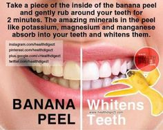 How To Whiten Your Teeth Naturally In 2 Minutes