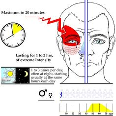"Cluster headaches often awaken the sufferer in the early morning or during the night - ""alarm clock headaches."" Characteristics include: pain almost always one-sided & remains on the same side during a series. Pain can occur on the opposite side when a new series starts. Pain is localized behind eye or eye region & may radiate to rest of face on the affected side. Affected eye can droop & the pupil may contract . http://www.headaches.org/education/Headache_Topic_Sheets/Cluster_Headaches"
