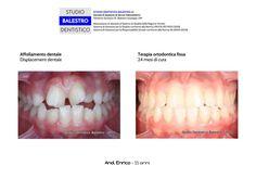 Studio Dentistico Balestro Casi clinici ortodontici http://www.studiodentisticobalestro.com/2011/06/malocclusione-dentale.html