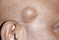 Lipomas are generally benign fatty tumors under the skin. They can be various sizes and in various locations on the body. They need to be removed by dermatologists or surgeons.
