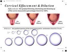 cervical dilation chart - Page 2