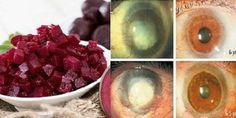 Kombinacja tych 3 składników pozwoli oczyścić wątrobę i poprawić wzrok - Zdrowe poradniki