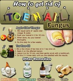 How to Get Rid of Toenail Fungus ~ Idees And Solutions