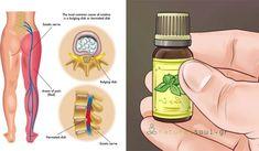 Ένα ποστ που θα θες να τυπώσεις για να το διαβάζεις κάθε μέρα.. - Natural Soul Essential Oil For Sciatica, Essential Oils For Pain, Essential Oil Blends, Sciatica Pain Relief, Headache Relief, Natural Headache Remedies, Natural Pain Relief, Sciatic Nerve, Nerve Pain