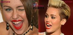 Miley Cyrus before and after cosmetic dentistry.