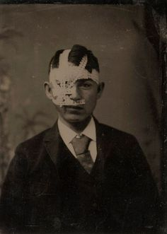 tuesday-johnson:    ca. 1880, [young man with bandaged head]  via the International Center of Photography, America and the Tintype Exhibition