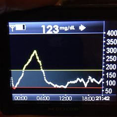 Pretty good day after last night's Mount Everest ... How are your numbers? #diabetes #t1d #type1 #type1diabetes #cgm #dexcom #dexcomg4platinum #insulinpump #spiritcombo #howareyournumbers by davehansford