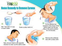 Top 10 Home Remedies to Remove Earwax / Saline water for ear wax removal http://www.top10homeremedies.com/home-remedies/home-remedies-remove-earwax.html