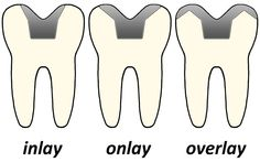 Dental Inlays and Onlays are lab-made restorations that are placed on #teeth when the cavity or lost #tooth structure is too large to be restored by a simple filling. To learn more:  http://dentalcarestl.com/z_inlays.htm   (image credit:  www.4shared.com) #Dentist #StLouis #MissouriDentist
