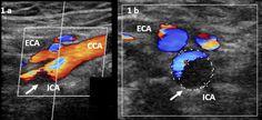 Love bites—an unusual cause of blunt internal carotid artery injury - New Zealand Medical Journal