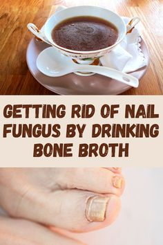 While most nail fungus treatments are topical, and have the risk of side effects, there are plenty of natural treatments for nail fungus as well. One thing you can do is change your diet by removing sugar and add nutrient rich foods like bone broth. Adding nutrients your body needs aids in the healing from the inside out. Click to read more. Toenail Fungus Home Remedies, Drinking Bone Broth, Nutrient Rich Foods, Natural Treatments, Toe Nails, Fungi, The Cure, Treats