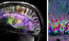 Harvard's Professor Jan Wedeen claims that the rainbow-coloured scans offer the first real insight into the pathways of the human brain's 100 billion cells - and how it works.