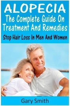 A Receding Hairline Points to Male Pattern Baldness - Amazing Herbs and Oils