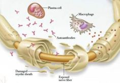 This is what the auto immune disease I have, CIDP, does to my nervous system.