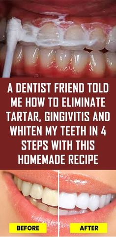 Natural Home Remedies A Dentist Friend Told Me How To Eliminate Tartar, Gingivitis And Whiten My Teeth In 4 Steps With This Homemade Recipe Teeth Health, Healthy Teeth, Dental Health, Oral Health, Healthy Tips, Health And Wellness, Health And Beauty, Healthy Women, Health Diet