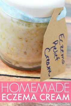 Easy DIY eczema cream made with essential oils. Gives your skin the relief it needs made with natural products you can trust. #essentialoils #homemade #eczema #ezemacream #DIY