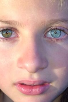 heterochromia - Google Search