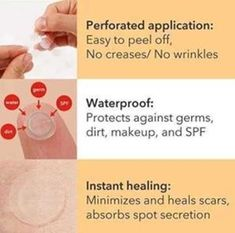 Buy 2 Get OFF (Code: Skin Tag & Acne Patch remove skin tag, moles and acne painlessly and permanently! Hydrocolloid and salicylic formulation adher Skin Care Regimen, Skin Care Tips, Skin Tips, Skin Tag Removal, Mole Removal, Remove Acne, How To Get Rid Of Acne, Homemade Skin Care, Salicylic Acid