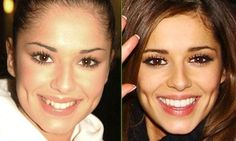 Celebrities That Have Had Cosmetic Dentistry - Pictures Before and After #SouthloopDentistry