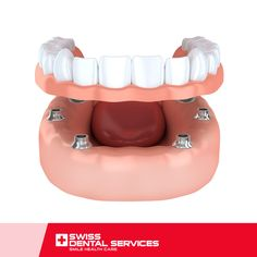 With the All-on-4 technique you can get back to smiling and eating without qualms! This technique allows even the most extreme cases to be resolved, since it can be applied on patients suffering from severe maxillary atrophy and whose dentition no longer exists, without needing bone grafts. www.swissdentalservices.com/en