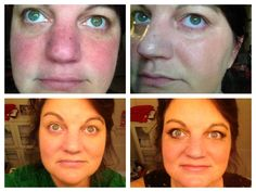 Rosacea suffer-er NO MORE!!  Younique Brilliant and BB Cream $39 www.mywowlashes.com