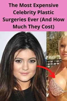 """One of the Hollywood taboos is also a """"hobby"""" for many, going under the knife. Although not many celebrities admit to having plastic surgery, it all becomes quite evident sooner or later. As some celebrities openly admit it – like the Kardashians – others hide it. So, here are some of the most expensive celebrity plastic surgeries. """