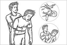 Aprende a practicar la Maniobra de Heimlich