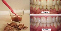 Diş minesine bakılmadığında tartar oluşur ve bu tartarlar temizlenmezse, enfeksiyonlar oluşur ve iltihaplı diş hastalıkları ortaya ...