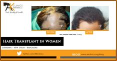 Losing hair is difficult for men, but for women it can be traumatic. With our ground-breaking hair transplant techniques, it can all be a thing of the past. Hair Transplant In India, Dramatic Hair, Breaking Hair, Hair Falling Out, Hair Breakage, Hair Loss Women, Hair Growth Tips, Hair Loss Remedies