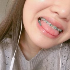 This is my braces hashtag new life Braces Smile, Teeth Braces, Cute Braces Colors, Braces Tips, Getting Braces, Brace Face, Dental Braces, Platinum Hair, Braids For Black Hair