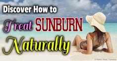 Sunburn – Discover Natural Sunburn Treatment and Remedies