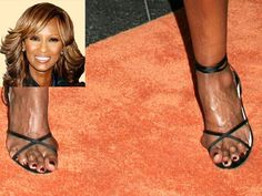 Iman, another victim of constant high heel and fashion shoe wearing.  The image speaks for itself, extreme bunion damage, hammer toes...overall very ugly.  A shame since she is such a beautiful woman she should be wearing something comfortable instead to help her beauty shine through www.meanfeet.co.uk