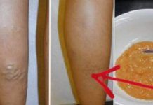 Natural Remedies for Varicose Veins. How to Get Rid of Varicose Veins Fast Naturally. What are varicose veins? The word How To Relieve Heartburn, Natural Remedies For Heartburn, Natural Health Remedies, Foot Remedies, Cough Remedies, Holistic Remedies, Acne Remedies, Varicose Veins Causes, Varicose Vein Remedy