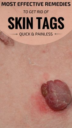 Most Effective Remedies To Get Rid Of Skin Tags Quick And Painless. A discrete above the lip on cheek mole is a beauty sign, but when the mole becomes a skin tag…well, that's very unsightly. There a lot of people that have skin tags and resort to differe Warts On Hands, Warts On Face, Get Rid Of Warts, Remove Warts, What Causes Warts, Anti Aging, Home Remedies For Warts, Herbal Remedies, Health Remedies