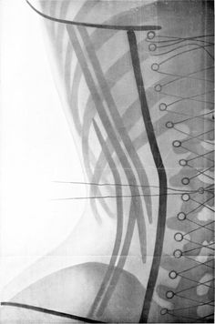 X-Ray of a Woman in a Corset, 1908
