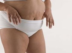 Exercises to Lose the Pouch After a C-Section