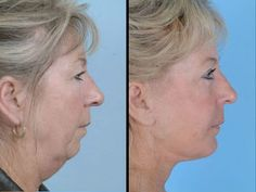 Shed Years Off Your Looks With Effective Yoga Facial Gymnastics Exercises: Facial Toning For Face Tightening: Does Your Face Have Saggy Jowl...