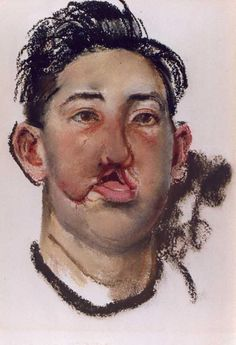 Henry Tonks watercolour documenting facial injuries of the First World War. Flanders Field, War Image, Everyday Items, Art Studies, Ageing, World War I, Wwi, Medium Art, First World