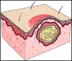 CYSTS SYMPTOMS AND TREATMENTS – CYSTS INFORMATION