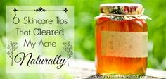 Clear acne naturally using these 6 skincare tips.